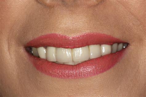 12 veneers for a New Smile | Dental Blog - Bounty Road Dental Practice