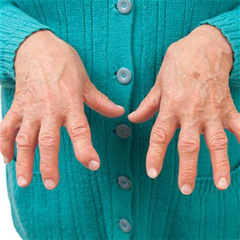Doe Rã Sumã by What Does Seronegative Rheumatoid Arthritis New Health Guide