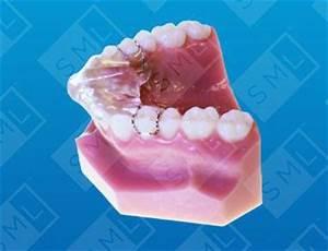 Tmj Chart Sved Deprogrammer Bite Maintenance Dentist Lab