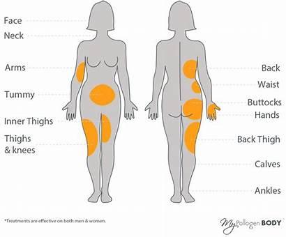 Areas Lipofirm Pro Skin Pollogen Treatments Treatment
