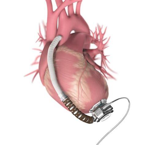FDA Advisory Panel Gives Green Light To HeartWare ...