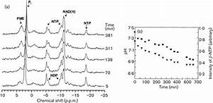 A  Time Sequence Of In Vivo 31 P