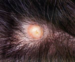 sebaceous cysts on scalp - pictures, photos