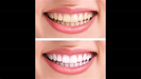 Best Tooth Whitening by Best Teeth Whitening Products Teeth Whitening Surrey