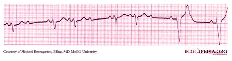 pacemaker chambre artificial pacemaker wikidoc