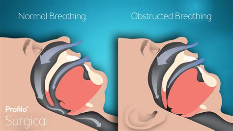 Sleep Apnoea by Obstructive Sleep Apnea 187 Profilo 176 Surgical
