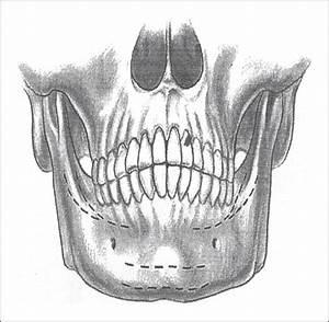 A Comparison Of Anterior Vs Posterior Isolated Mandible