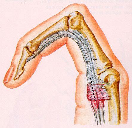 Trigger Finger Diagram by Orthopaedics Trigger Finger