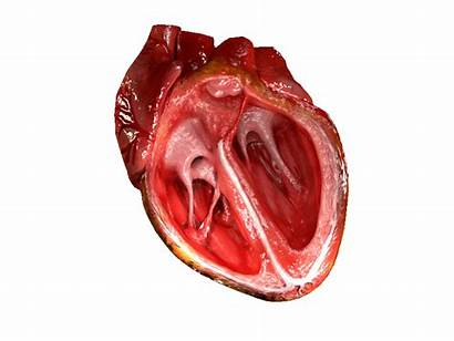 Heart Blood Pump Does Human Flow Science