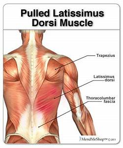 152 best Back Pain & Sciatica images on Pinterest | Health ...