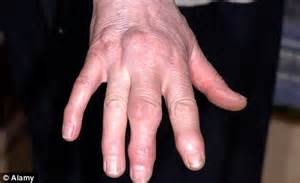 sausage fingers  knobbly knuckles    hand