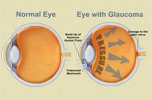 VISIQUE KAPITI EYECARE: July is Glaucoma Awareness Month  Glaucoma Eyes and Vision