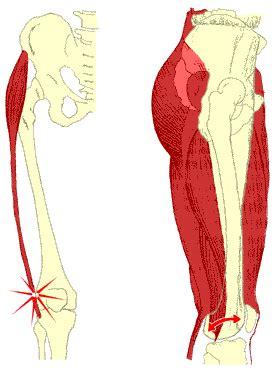sportmedizin kompendium tractus iliotibialis syndrom