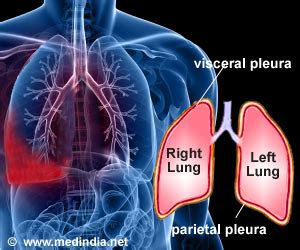 Is Pleurisy A Symptom Or Condition?. Rainbow Child Signs. March 28 Signs Of Stroke. Spoon Fork Signs. Adorable Signs Of Stroke. Aha Asa Signs. Vaso Occlusive Crisis Signs. Cricut Signs. Flash Card Signs Of Stroke