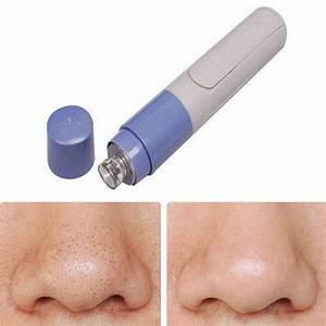 Blackhead Vacuum Remover - Life Changing Products