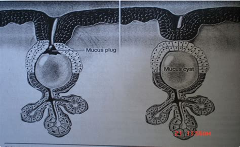 Notes on Mucocele and Mucous Retention cyst-Etiology ...