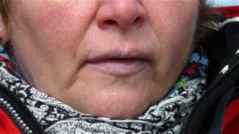 blaue lippen ursachen und therapie