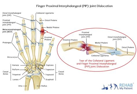 Finger Proximal Interphalangeal Pip Joint Dislocation