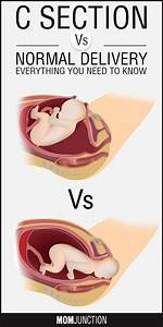1000+ images about Pregnancy Care on Pinterest | Labor ...