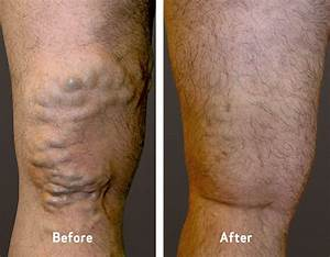 Varicose Vein Treatment Before & After Photos | Vein ...