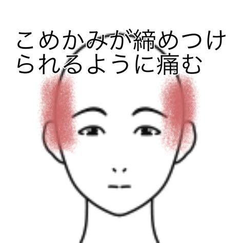 頭痛 こめかみ の 上