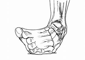 Sprained Ankle  Heal Fast And Strong With Self Treatment