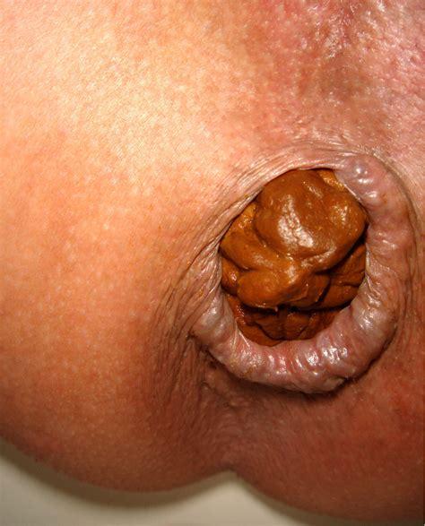 close up pussy, arschloch pics
