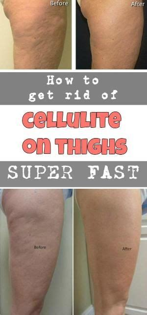 How To Get Rid Of Cellulite On Thighs Super Fast By Jeanne. Education Laws In The Us Insurance Free Quote. Cards For College Students Roof Mold Cleaning. Paralegal Career Information. Check Transmission Fluid Grants Masters Degree. 1977 Ford F250 Highboy Antiques Car Insurance. Trans Vaginal Mesh Lawsuit Anti Fatigue Matts. Interior Design Stages Sd County Whos In Jail. Medical Billing Companies In New Jersey