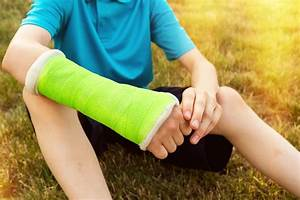 How To Stay Active When Your Foot  Arm Or Leg Is In A Cast