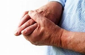 Народные средства при лечении артрита пятки