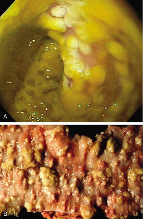 c diff stool color publications antibiotic associated diarrhea and