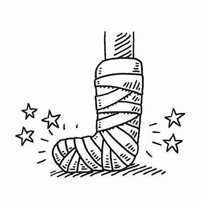Clipart Gipsbein Leg Broken Bandage Cast Drawing