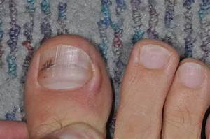 Melanoma Under The Toenail | Motavera.com