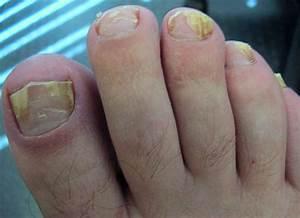 Грибок ногтей происхождение