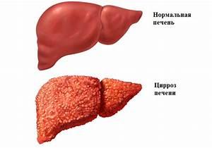 Поддерживающие препараты для печени при вирусном гепатите с