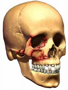 Skull and Facial Fracture - Cancer Care of Western New York