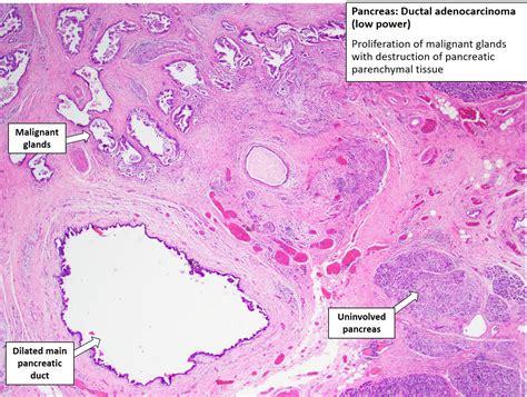 pancreas adenocarcinoma nus pathology