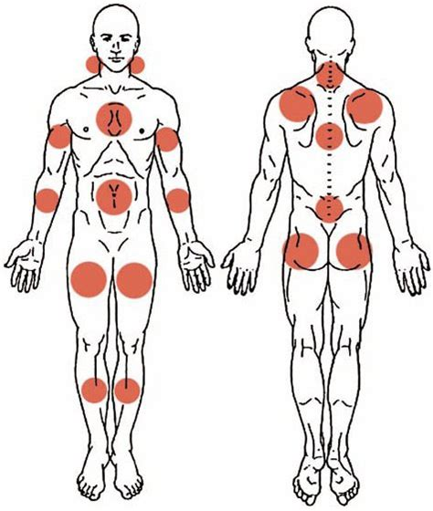 criteres de diagnostic de la fibromyalgie revue medicale