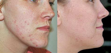 acne light therapy neolts light therapy system the baltimore center plastic