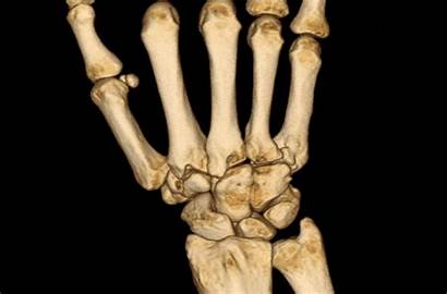 Ct Computertomographie Radiologie Handgelenkes Radiologische Pawlow Ge