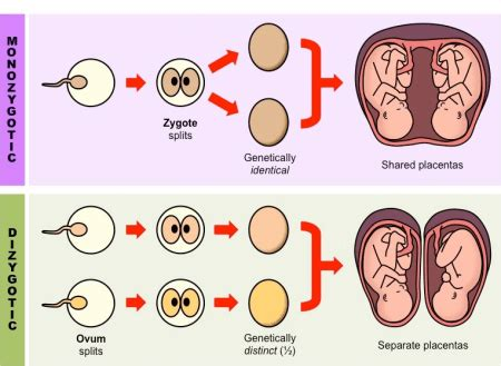 monozygotic  dizygotic twins difference