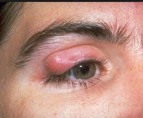 eye styes bumps  blemishes   treatments