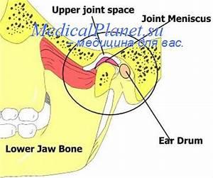 Артроз челюсти и лечение внчс
