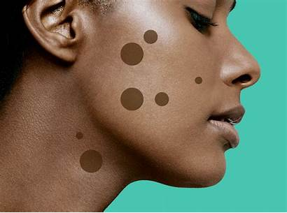 Dark Spots Spot Face Remove Treatments