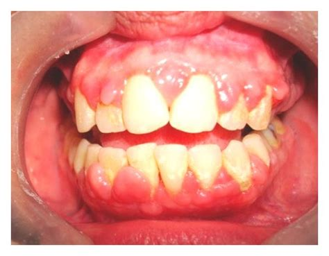 Gingival enlargement can be seen with signs of ...