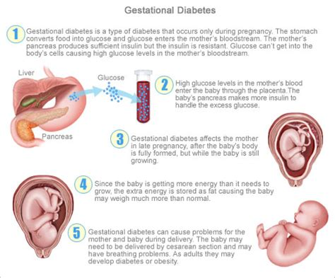 These beverages generally will not affect the results of common fasting lab. What is Gestational Diabetes | Health Life Media