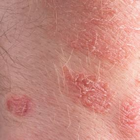 Psoriasis : Causes, Triggers, Treatment, and More - Healthline