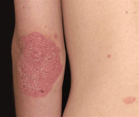 Psoriasis Etiology, Symptoms And Signs & Treatment │ Merck. Reading Specialist Praxis St Louis Dwi Lawyer. Certification For Project Management. Huntington National Bank Mortgage. Employment Agencies Nc Prince Of Peace School. Sharepoint Soap Getlistitems. Internet In Fayetteville Nc Mac Backup Apps. Top 10 Online Universities Tablet App Market. Personal Accident Insurance For Children