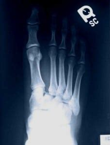 Lisfranc injury indicates disruption between the base of the 2nd metatarsal and the mechanism of injury: Lisfranc Fracture-Dislocation - The Western Journal of Emergency Medicine