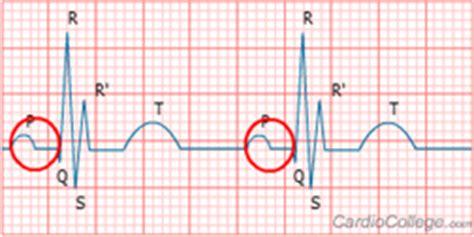 ekg course electrocardiogram interpretation